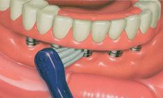 Гигиена полости рта лиц, пользующихся протезами с опорой на зубные имплантаты